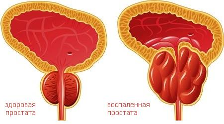 острые признаки простатита